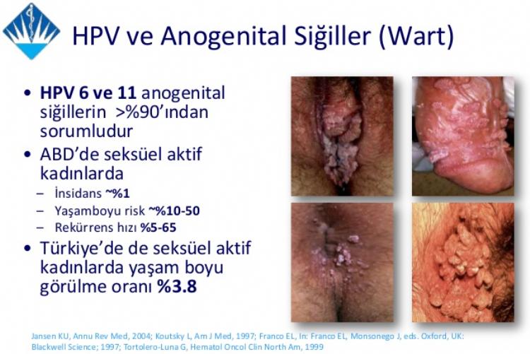hpv virusu tedavisi kad n