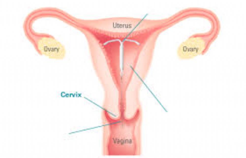 Tampon in uterus
